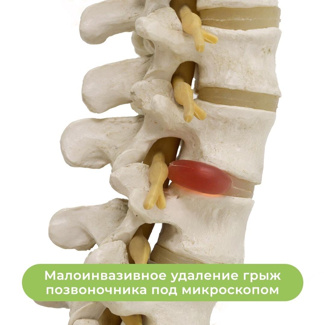 Малоинвазивная хирургия одного дня. Забыть о боли!