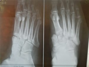 Оперативное лечение тяжёлой травмы стопы