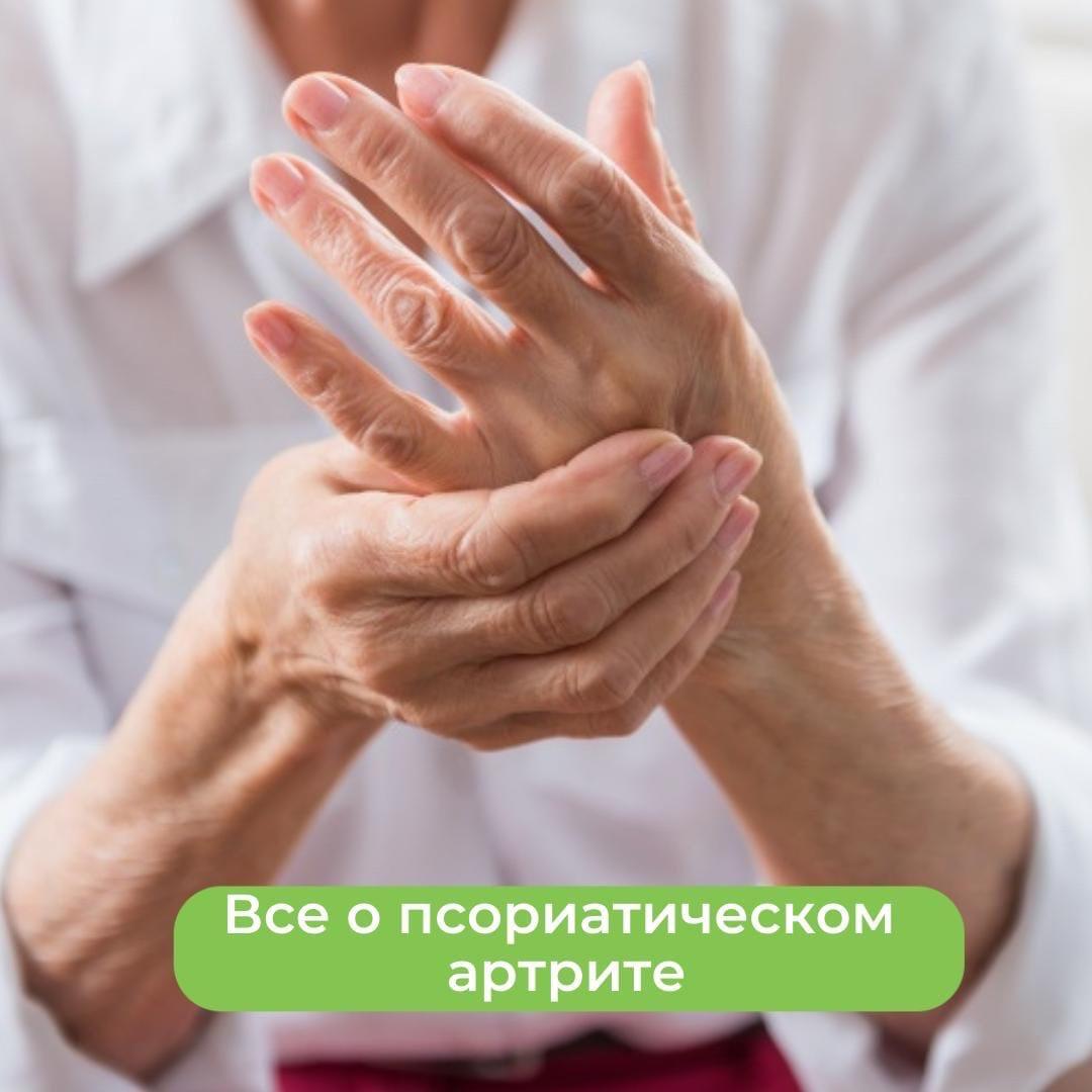 Всё о псориатическом артрите