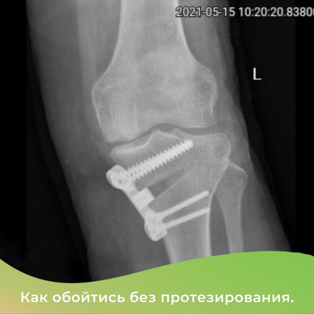 Можно обойтись без протезирования сустава!