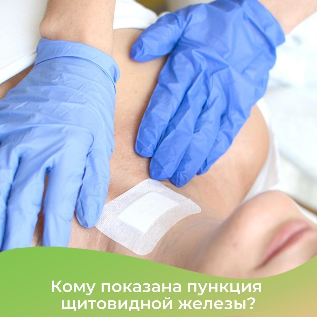 Кому показана пункция щитовидной железы?